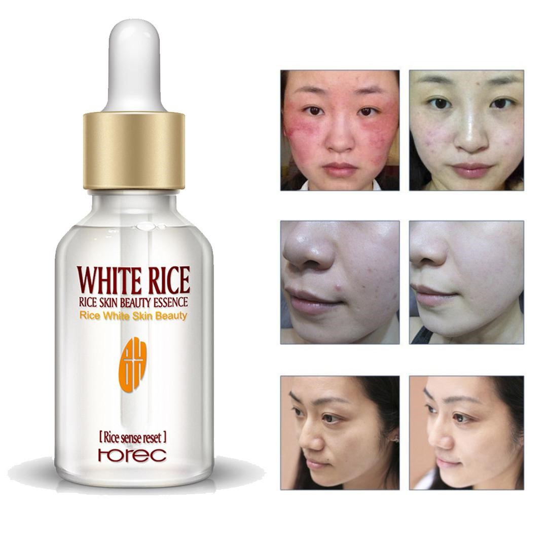 Mytools ROREC White Rice Serum Essence Enzyme Rejuvenation Serum Skin Moisturizing